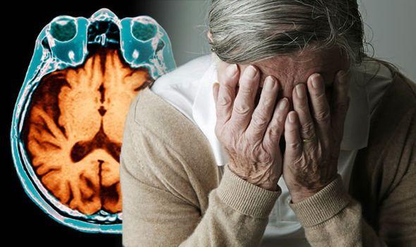 Alzheimer2 آلزایمر